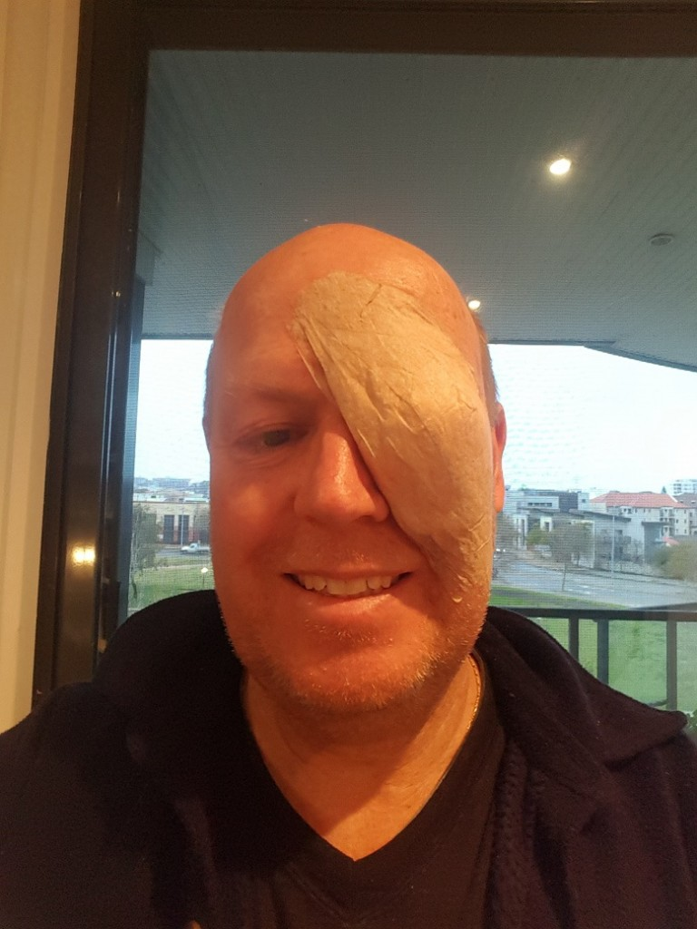 Selfie - Eye Patch